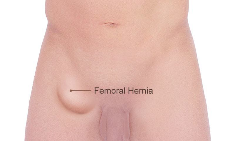 Femoral HerniaTreatment London